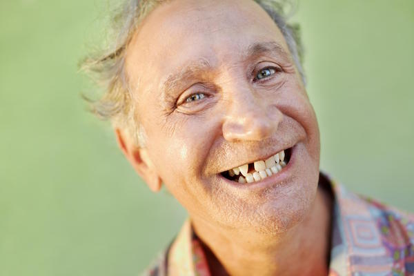Should You Consider Dental Implants When You Have A Missing Tooth?