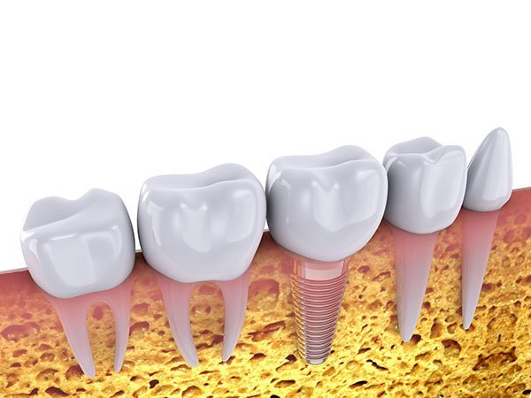 Dental Implants – A Common Cosmetic Dentistry Procedure