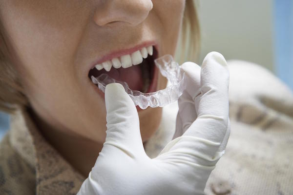 Using Invisalign to Straighten Your Teeth
