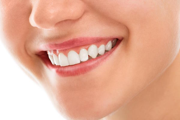 Teeth Whitening – Is It Worth It?
