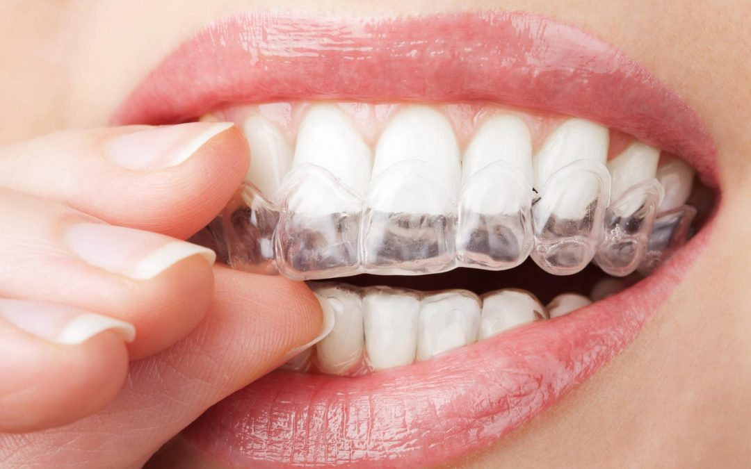 Why Are Invisalign Clear Braces So Popular?