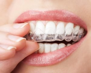 Why Are Invisalign Clear Braces So Popular Dentist Forster