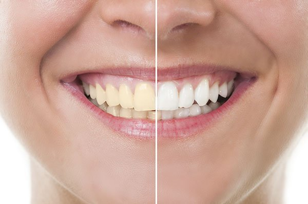 How Important Is Teeth Whitening?