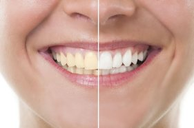 Teeth Whitening and Cosmetic Dentistry