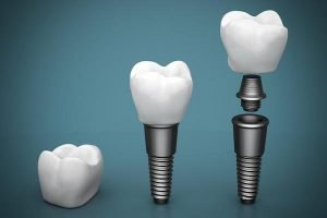 Dental Implants and Mini Implants | Dentist Forster