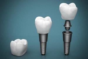 dental implants Forster