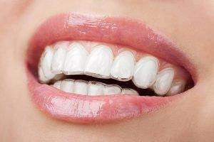 Invisalign | Dentist Forster
