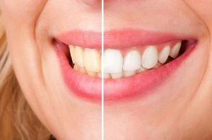 Teeth Whitening | Dentist Forster