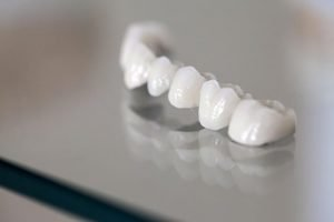 Zirconia Bridges | Dentist Forster