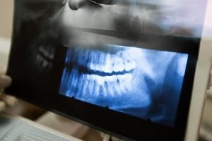 Diseases of the Jaw | Dentist Forster