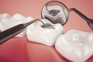 Lost Fillings Crown Or Inlay Onlay | Dentist Forster