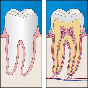 Root Canal Treatment | Dentist Forster