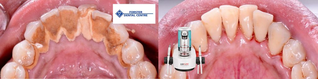 AIRFLOW Prophylaxis Master Before and After Forster