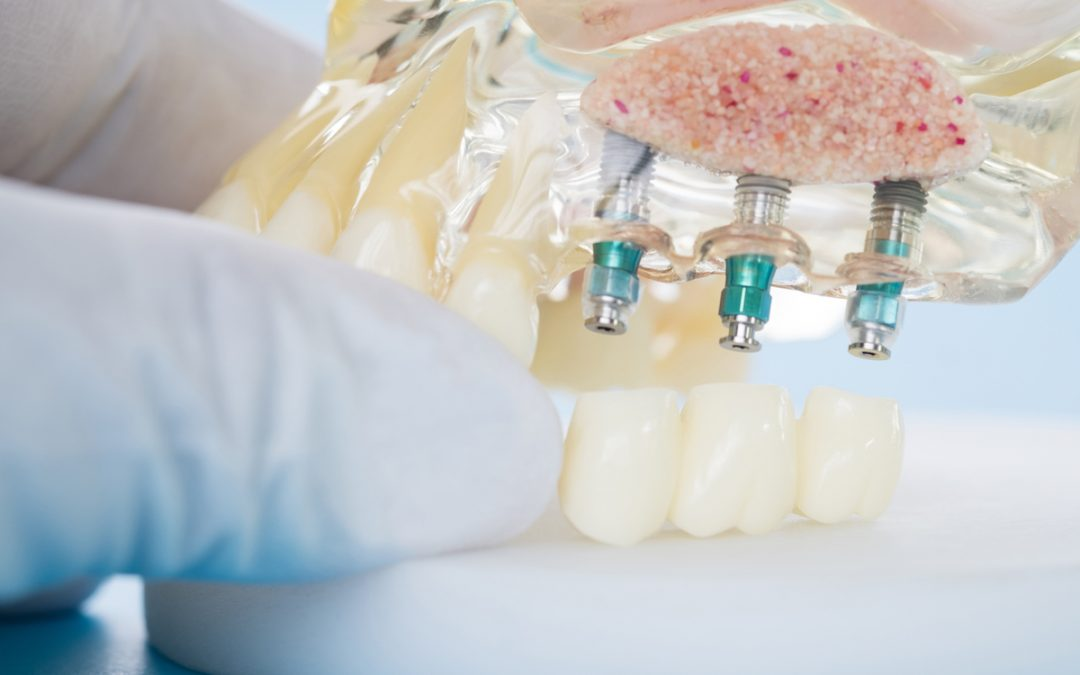 Dental Implants In Forster: The Benefits And Advantages