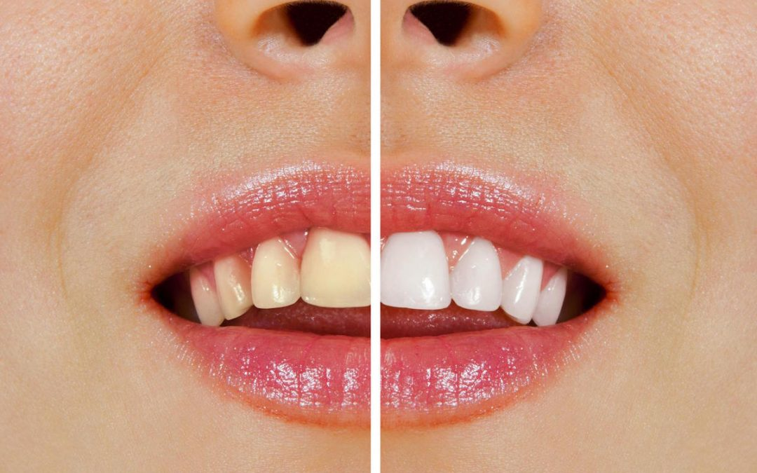 Over-the-Counter Whitening vs Professional Whitening at Forster Dental Centre