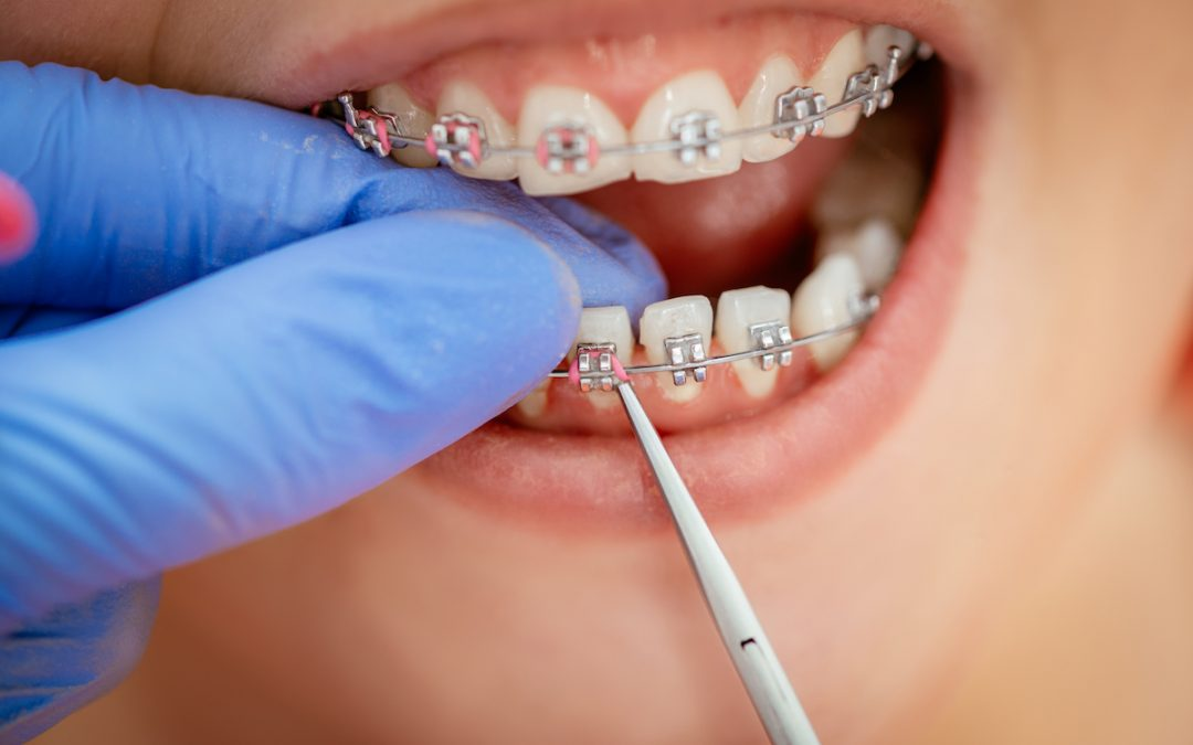 Braces and Missing Teeth – Can They Go Together?