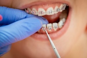 braces and missing teeth can they go together forster