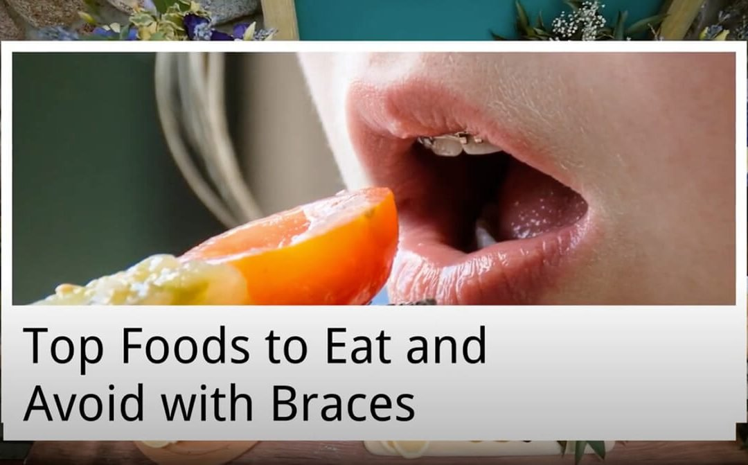 Top Foods to Eat and Avoid with Braces from Forster Dental Centre