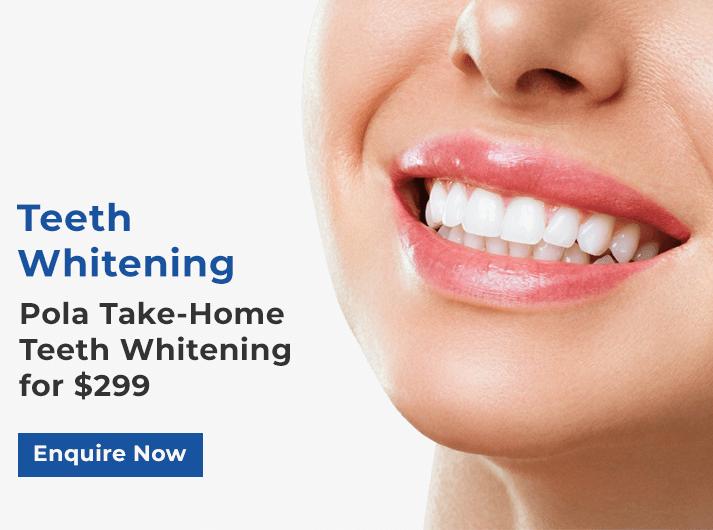 teeth whitening promo banner forster