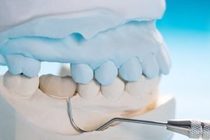 how long will dental crowns last answers from forster dental centre
